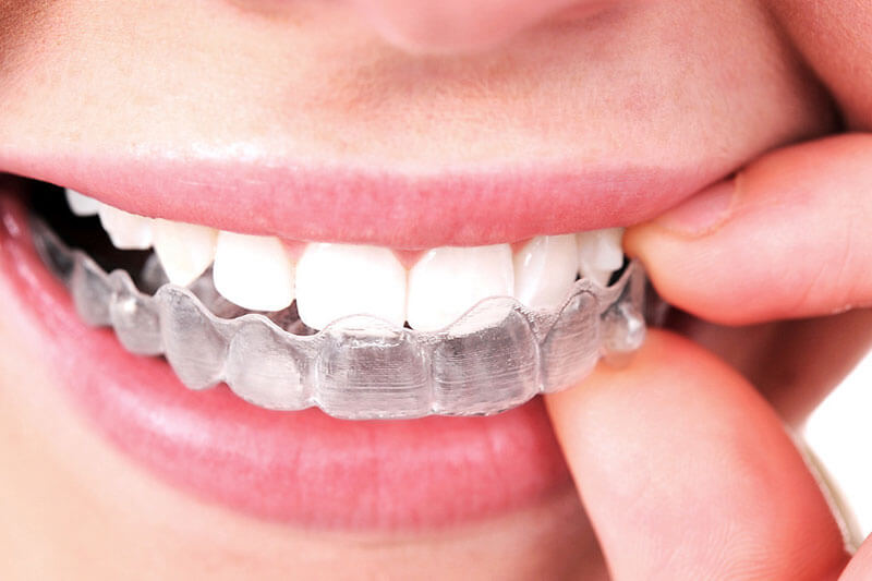 woman putting in Invisalign aligners