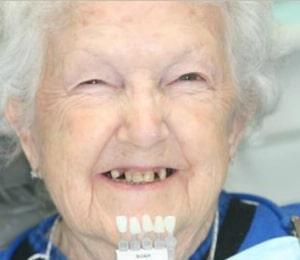 elderly woman getting porcelain veneers